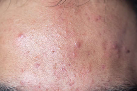 Backgrounds of lesions skin caused by acne on the face in the clinic.