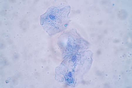 Characteristics of Squamous epithelial cell (Cell structure) of human under microscope view for education in laboratory.