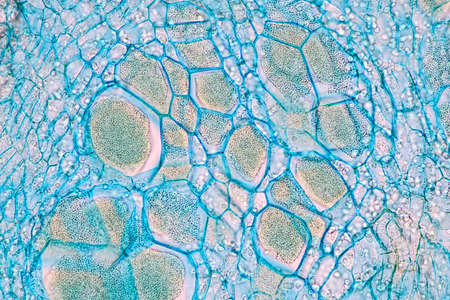 Host cells with spores (mold) are inside wood under the microscope for education.