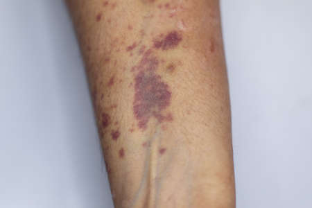 The physical appearance of the arm with the wound is caused by Haemophilia, (Haemophiliais a mostly inherited genetic disorder)