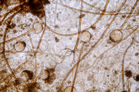 Characteristics of Rhizopus is a genus of common saprophytic fungi on Slide under the microscope for education.