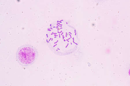 Chromosomes Human under the microscope for education.