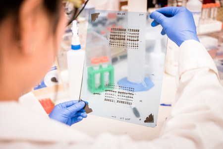 Researcher working on Western Blot results