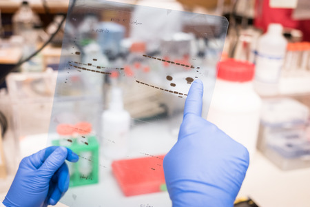 electrophoresis: Researcher working on Western Blot results