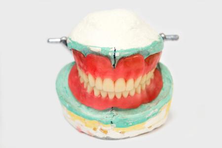 Image générique d'une prothèse ou d'une couronne utilisée en dentisterie moderne. Banque d'images - 81645580