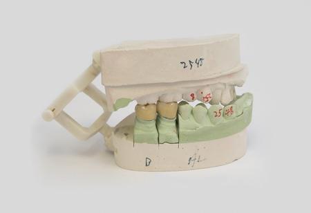 Image générique d'une prothèse ou d'une couronne utilisée en dentisterie moderne. Banque d'images - 81645578