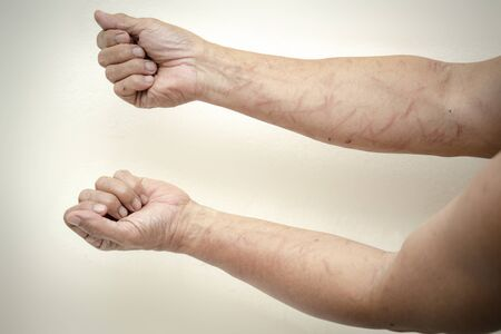 Image of injured arms from a leaf in a hike without protective clothing. Stock Photo