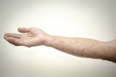 Image of injured arm from a leaf in a hike without protective clothing.