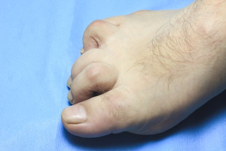 the toe is deformed. people are disabled. the finger is very sore. Standard-Bild