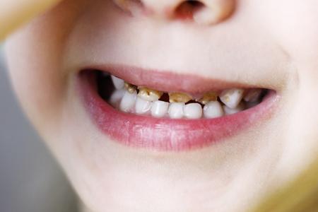 Babymädchen sitzt auf dem Stuhl beim Zahnarzt. Hände schließen die Augen. Frontzähne bei Karies. geringe Schnitttiefe. es gibt tonen. Standard-Bild