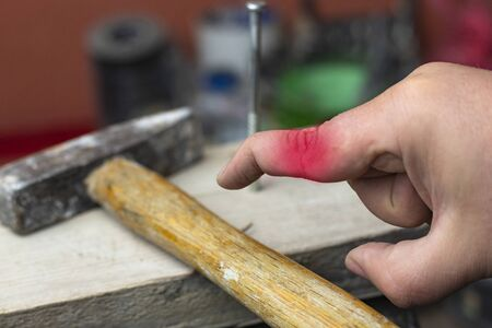 man is trying to hammer a nail. missed and hit my fingers. finger deformity
