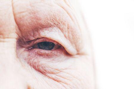 Nahaufnahme. Frau im Alter. Auge in der Mitte des Rahmens. Die Pupille hat einen weichen Fokus, das Konzept der schlechten Sehkraft, alles ist verschwommen.