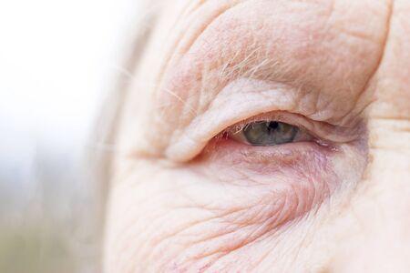Zbliżenie. Kobieta w wieku. Oko w centrum kadru. Uczeń ma nieostrość, pojęcie słabego wzroku, wszystko jest rozmazane.