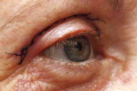 Eye plastic surgery Stock Photo