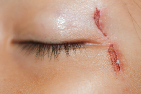 scratches: Close up of painful wound nearly the eye