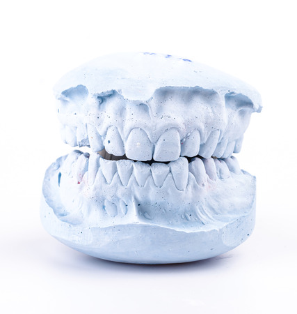 plaster mould: teeth mold on isolated white background