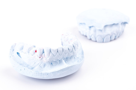 periodontics: teeth mold on isolated white background