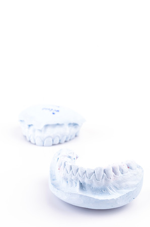 teeth mold on isolated white background photo