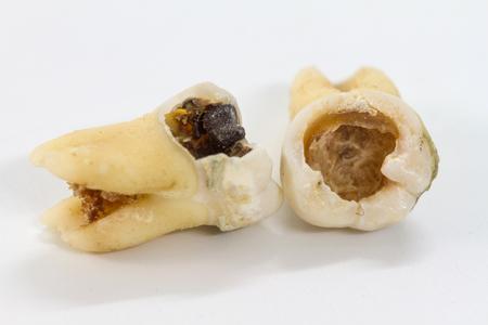 흰색 배경에 부식 된 치아를 닫습니다. 스톡 콘텐츠