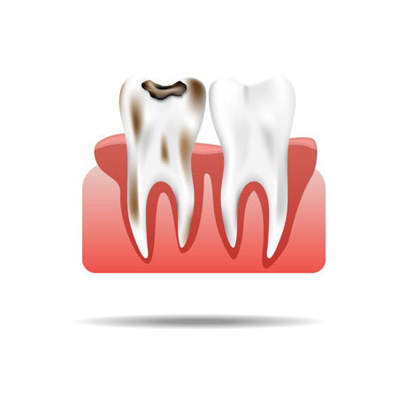 Enamel Caries Infection and Health Tooth  Realistic Pulpitis. Stomatology Health Care., vector illustration