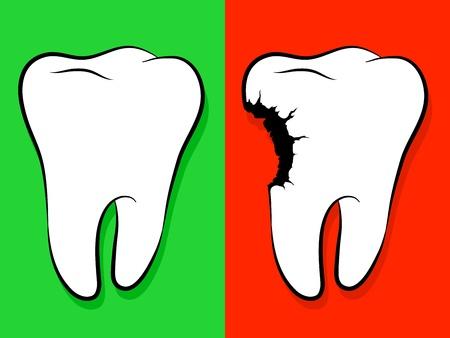 diente caries: Dibujos de dientes sanos y enfermos aislados en verde para la salud y el rojo como advertencia de la caries