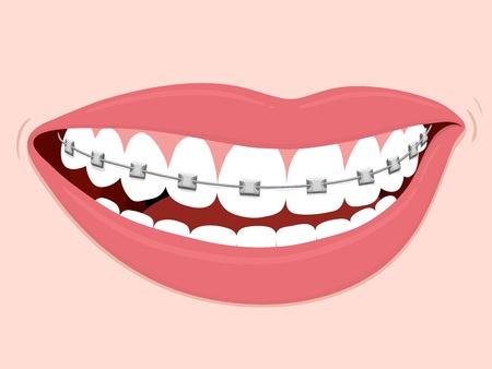 Frenos de ortodoncia correctiva, sonriente boca de mujer con los dientes sanos y aparatos ortopédicos Ilustración de vector