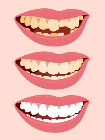 rotten: Progressive Stages Of Tooth Decay, illustration of open female mouth showing three steps to rotten teeth