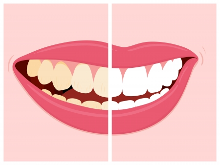 Before and after view of teeth whitening using dental bleach with a smiling woman displaying her teeth with a central division showing discolouration on one side a clean white on the other,  Stockfoto