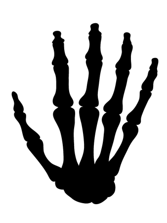 distal: Negro silueta de los huesos de la mano aislado en blanco en un cuidado de la salud y el concepto médico, ilustración vectorial