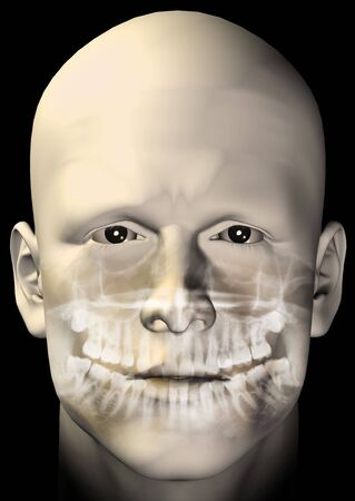 radiology: Male figure portrait with dental scan x-ray. 3d computer generated illustration.