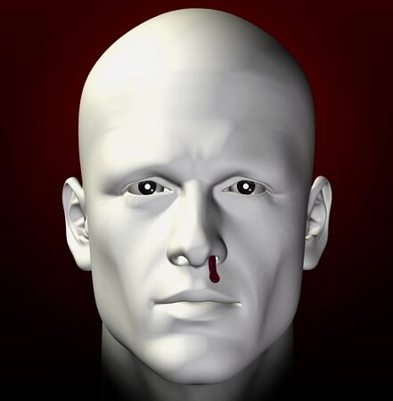 bleeding: Man portrait with bleeding nose. 3d illustration. Stock Photo