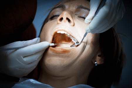 grinding teeth: Dentist examining a patients teeth before oral surgery at the dental clinic. Removing amalgam fillings. Professional care of patient teeth.