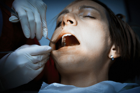 amalgam: Dentist examining a patients teeth before oral surgery at the dental clinic. Removing amalgam fillings. Professional care of patient teeth.