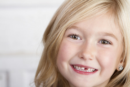 Close up of child missing her top front tooth Imagens