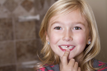 grinning: Child missing front tooth pointing at it with her finger Stock Photo