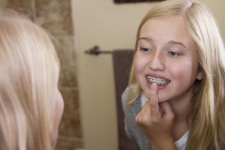 ortodoncia: Muchacha adolescente que mira en el espejo, examinar sus apoyos