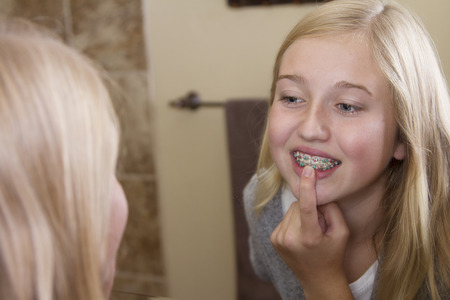 teen girl: Teen girl looking in the mirror, examining her braces