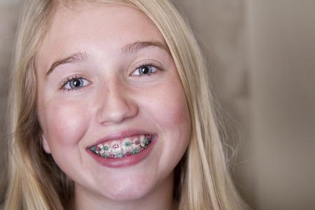 ortodoncia: Joven muchacha adolescente con las paréntesis en los dientes
