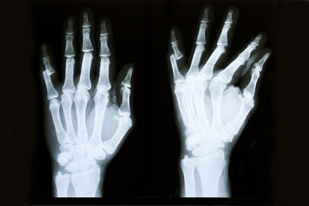 bodily: X-ray of human hands injury Stock Photo