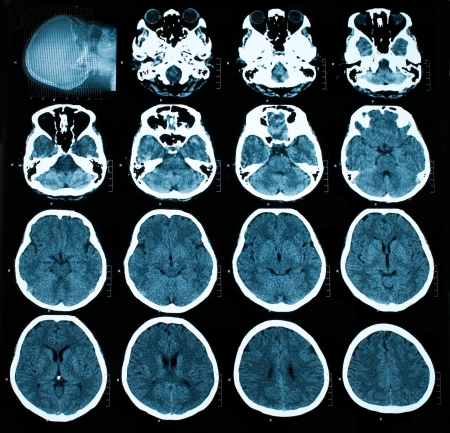atrophy: CT scan of brain