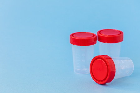 Plastic jars for medical tests isolated on blue background