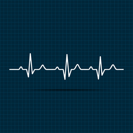 rhythm: Vector Illustration heart rhythm ekg .vector