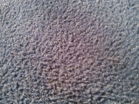 bumpy: bumpy rubber surface of mouse pad