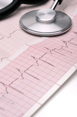 sinusoidal: Close-up shot of phonendoscope lying on a cardiogram Stock Photo