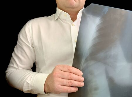 A doctor in a white shirt looks at an x-ray. A man holds a chest x-ray in his hands. Concept: medical examination, MRI, test result