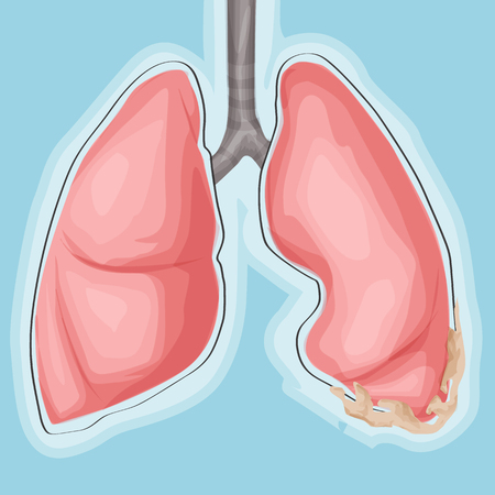 Lung and cancer. Medicine vector illustration, cartoon style Illustration
