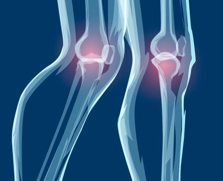 Human leg bones, x-rays. Mecial vector illustration.
