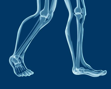 Human Leg Bones X Rays Mecial Vector Illustration Royalty Free