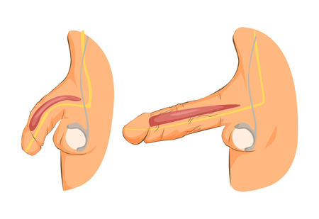 Male organ, penis erection, medical illustration with man anatomy reproductive.