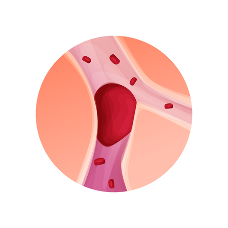 Blocked blood vessel, artery with blood clot realistic vector illustration isolated background
